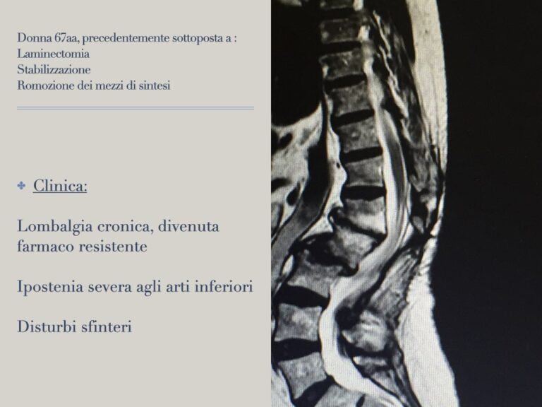frattura-osteoporotica.001