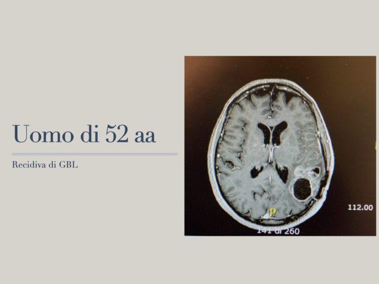 gliomi1.001