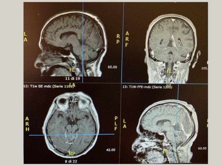 patologia-base-cranica3.001