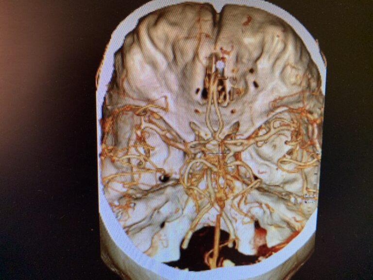 patologia-vascolare3.001