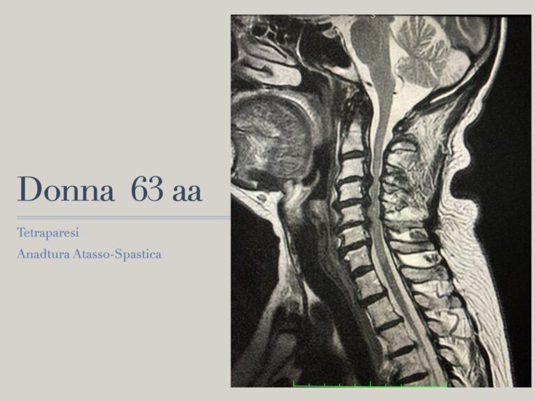 stenosi-cervicale1.001