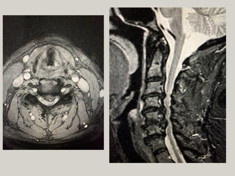 stenosi-cervicale2.001